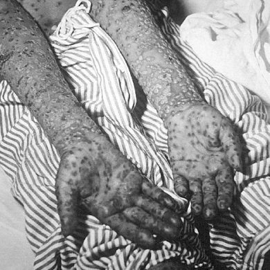 Smallpox, Kosovo, Yugoslavia epidemic, March and April 1972