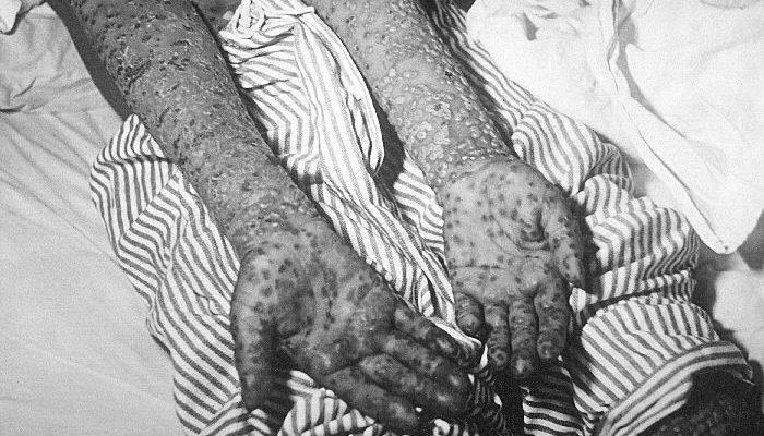 Smallpox, Kosovo, Yugoslavia epidemic, March and April 1972