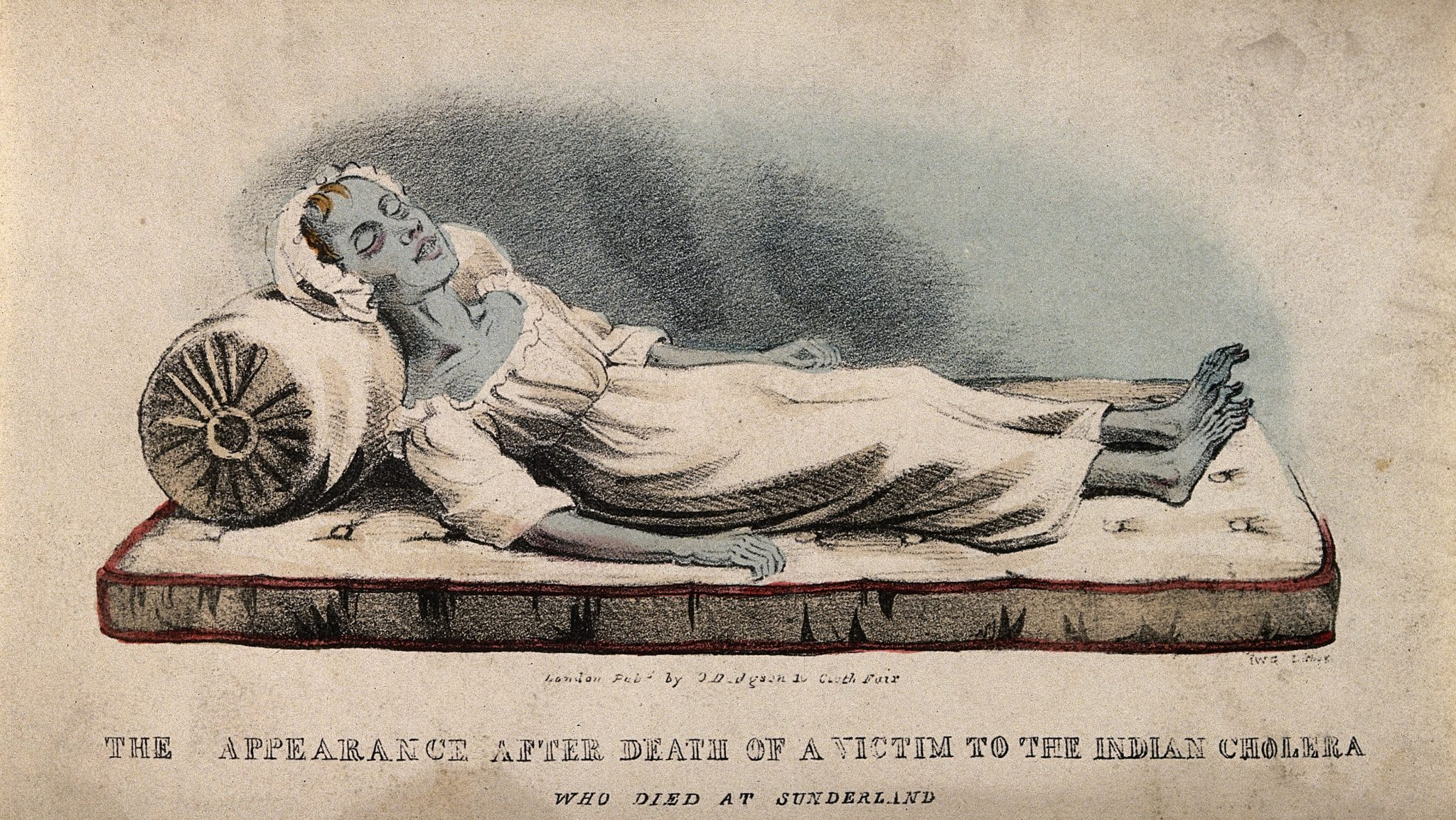 A dead victim of cholera at Sunderland in 1832.